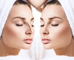 2021 Top 4 Best Surgeons for Rhinoplasty (Nose Job) in Istanbul Turkey