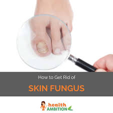 How to Get Rid of Skin Fungus - Health Ambition