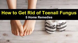 and while fungal toenail infection may not be life threatening you ll still realize the importance of your feet