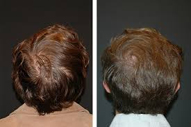 prp patient before after photos