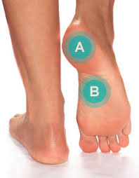 Foot Illness Chart Foot Ailments Arch Plantar Fasciitis Footsmart