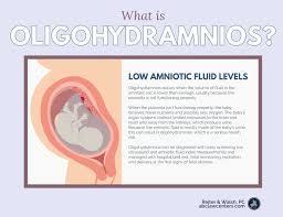 Amniotic Fluid Levels Chart Pin On Pregnancy Health