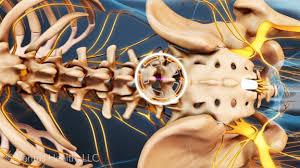 orthopedic surgeon vs neurosurgeon for spine surgery orthopedic surgeon description