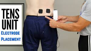 Tens Machine Pad Placement Chart Tens Unit For Low Back And Sciatic Pain Electrode Placement