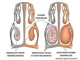 Заболевания органов дыхания у детей Особенности детской дыхательной системы