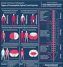 Spinal Cord Injury Chart A Chart On Spinal Cord Injuries Neuroanatomy Infographic