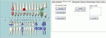 Open Dental Software Missing Teeth
