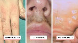 types of warts and how to treat them