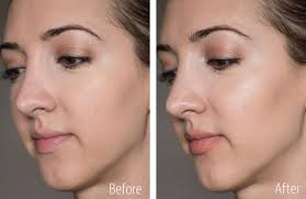 cheek contour before and after. burberry fresh glow highlighting luminous pen, lip colour contour, face contour before \u0026 after cheek and