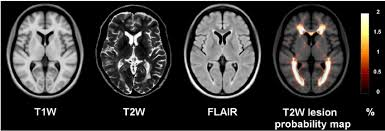 Flair Template Rrms Templates T1w T2w Flair And T2w Lesion Probability Map