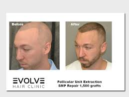 follicular unit extraction before and after