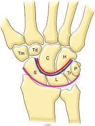 Normal Anatomy Of The Carpal Bones Diagram Of The Wrist