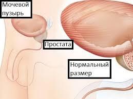 Лечение за рубежом, России, реалитация, детоксикация)