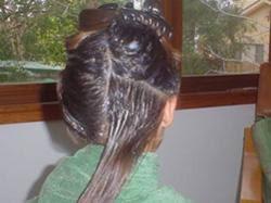 Treatment Head lice