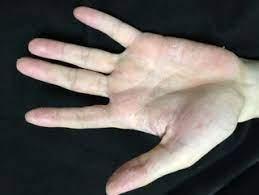 手 の 皮 が むける ストレス