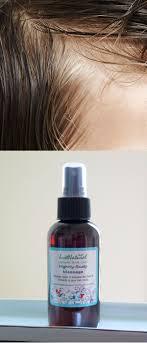 Grow New Hair Hair Care Solutions