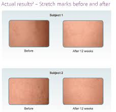 Mederma Stretch Mark Cream Review Does It Get The Job Done