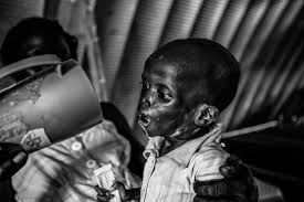 photos i saw many bad things says boy who fought in south jal puok is one of the worst cases of severe acute malnutrition that doctors have seen