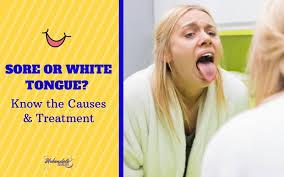sore or white tongue