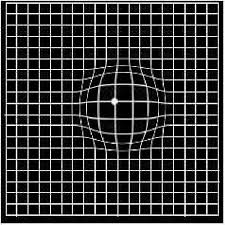 Pdf A Study On Amslers Grid In Acquired Macular Disorders