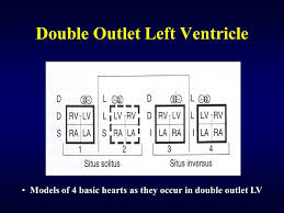 double outlet right ventricle ppt 26 double outlet left ventricle