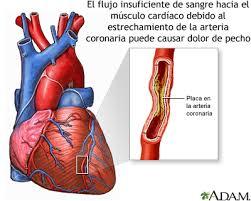 Resultado de imagen para ataque al corazón