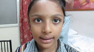 patient s sch after cleft palate surgery dr jaideep singh chauhan
