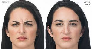 wrinkle reduction dr beth comeau
