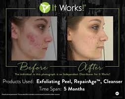 it works exfoliating peel before and after 28 best it works images on pinterest it works products it works