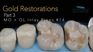 Dental Inlay Cast Gold Restorations Part 3 Mo Ol Inlay Preps 14