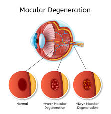 Age Related Macular Degeneration Eye Chart The Amsler Grid Test Diagnosing Amd Quickly Nvision Eye