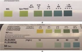 Urine Stick Colour Chart Reference Colours For The Albustix And Microalbustix Urine