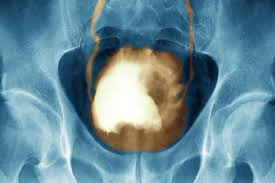 The medical name for this is haematuria and it's usually painless. Bladder Cancer Symptoms Pictures Warning Signs Treatments Survival Rates
