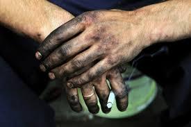 greasy hands photos royalty free