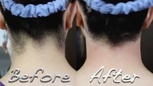 shape your neck hairline without waxing