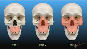 Le Fort Fracture Lefort Classification Of Facial Fractures Uw Emergency Radiology