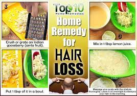 home remes for hair loss top 10