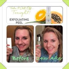 it works exfoliating peel before and after it works products exfoliating peel cristina duran lets wrap you