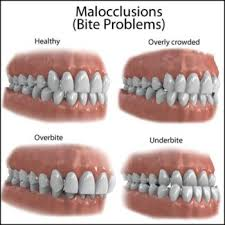 Types Of Malocclusion And Correction Winchester Dental