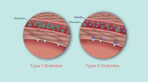 Type 1 Diabetes Vs Type 2 Diabetes Comparison Chart Whats The Difference Between Type 1 And Type 2 Diabetes