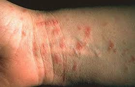 Image result for scabies