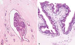 pt1c prostata