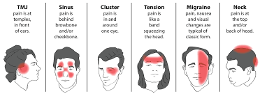 pain behind left eye and its ociation with headache of migraine condition