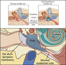 hörverlust bei erkältung
