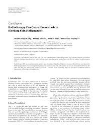pdf radiotherapy can cause haemostasis