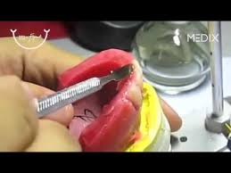teeth setting denture teeth setting youtube