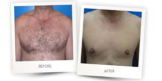 soprano ice laser hair removal painfree before after 5