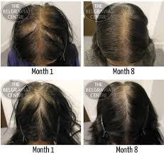 belgravia centre for hair loss brilliant female pattern hair loss patient treated