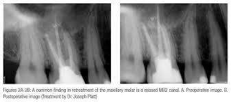 Maxillary Second Molar Frequency Of Location Of A Second Mesiobuccal Canal In Maxillary