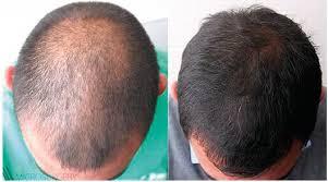 pharmacological treatment of alopecia